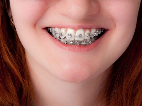 does-your-child-really-need-braces