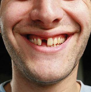 missing teeth 1