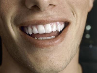 rich teeth2